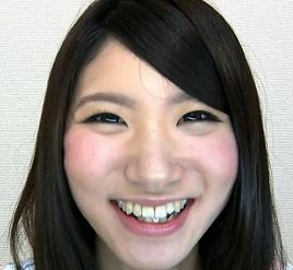 歯観察「美しき銀歯」ゆうこちゃん
