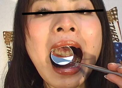 【動画】「みき」の口内・超接写観察-part4-[UC05MIKI04]