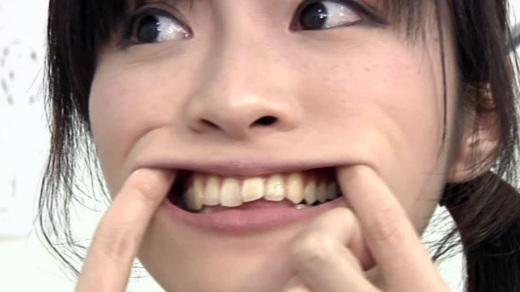 歯フェチ銀歯!処置室 さらちゃん