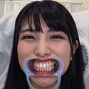 【歯フェチ】倉木しおりちゃんの歯を観察しました!
