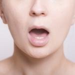 口内炎の水泡はなぜ?口内炎の種類とそれぞれ違う原因について