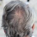 円形脱毛症に気づいた時はどうすれば!?治療の目安は?髪の毛を失ってしまう!?