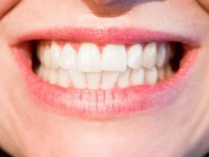 自分の歯を数えて33本以上あったらそれは過剰歯です