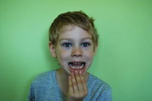 永久歯が全部生えそろったか確認はしていません…