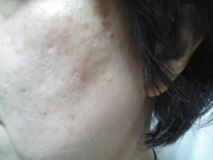 d2db48e8e5b22e3b9d0cda9f16d75c7d_s シミ 肝斑 ニキビ痕 頬 老人