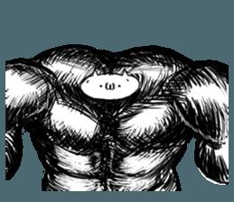 Aa 筋肉 全身性アミロイドーシス(指定難病28)