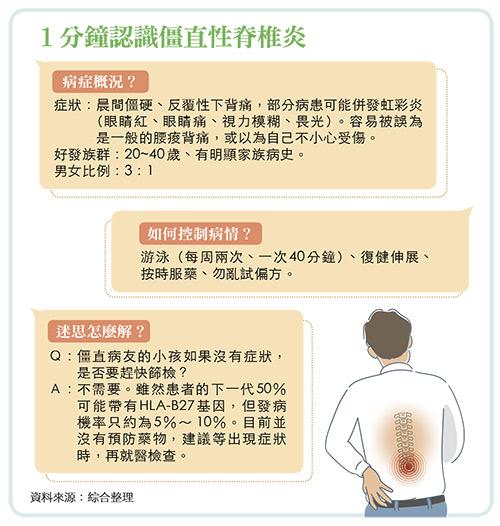 僵直性脊椎炎