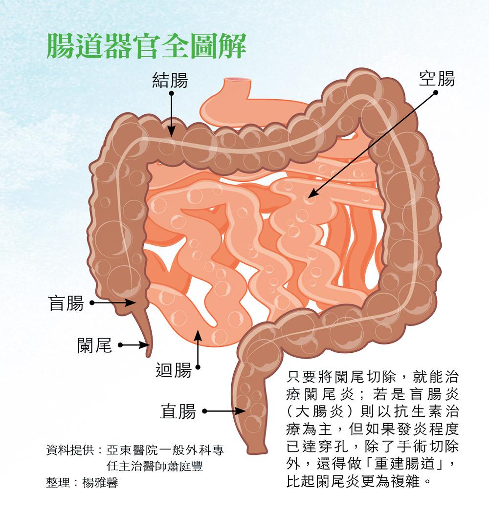 盲腸 位置