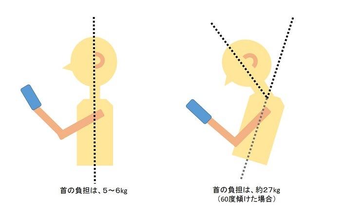 正しい姿勢と間違った姿勢の比較イラスト