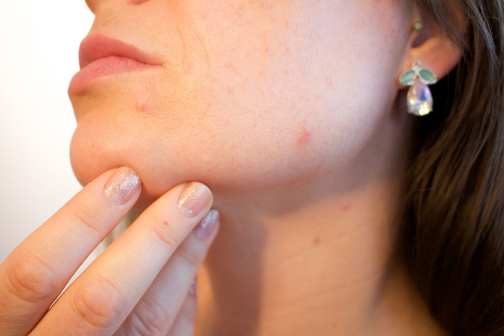 【ニキビ肌向け】ニキビ肌におすすめの化粧下地10選|選び方も解説!の画像