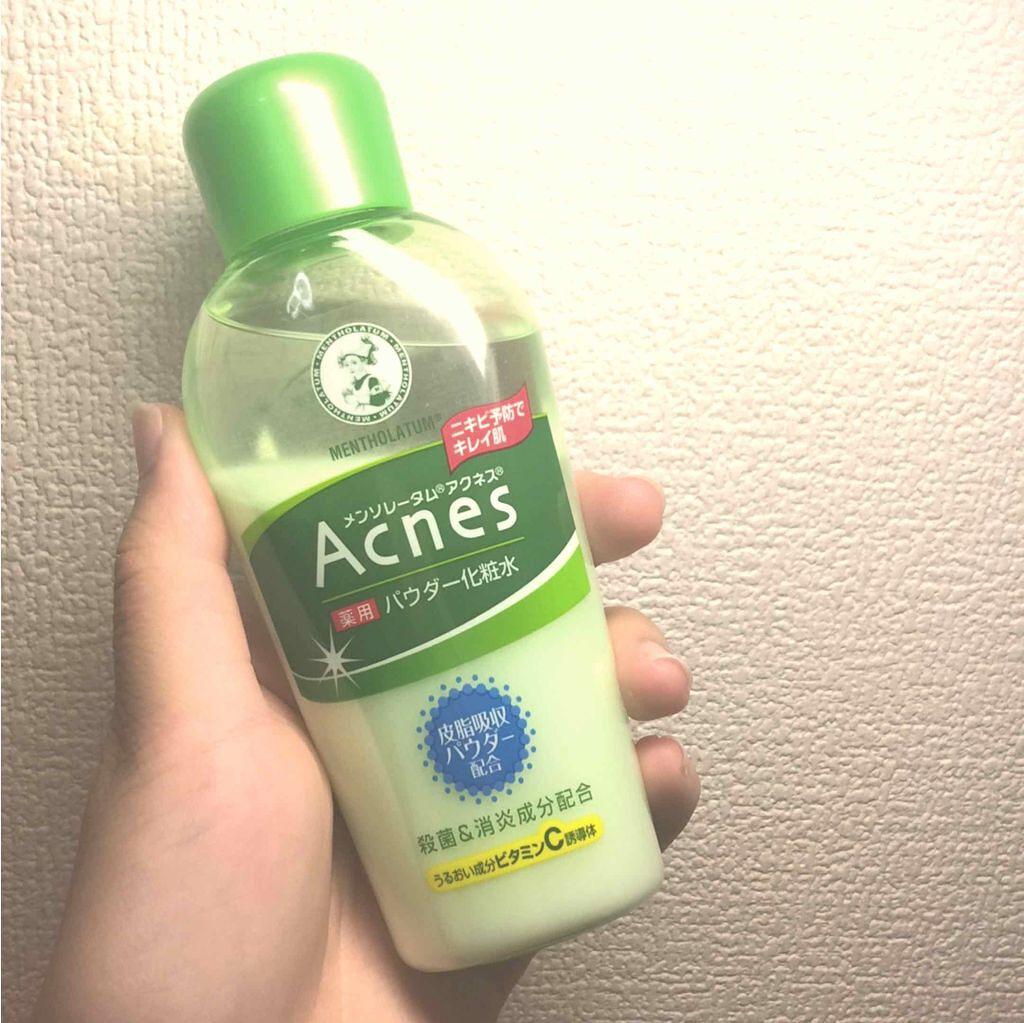 「【ALL 2,000円以下】新年に向けて肌も大掃除!?ニキビケア向け化粧水集めました」の画像(#120538)