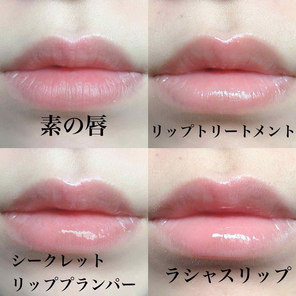 「唇の血色を良くする方法|血色感アップにおすすめリップアイテム&メイク方法もご紹介!」の画像(#126012)
