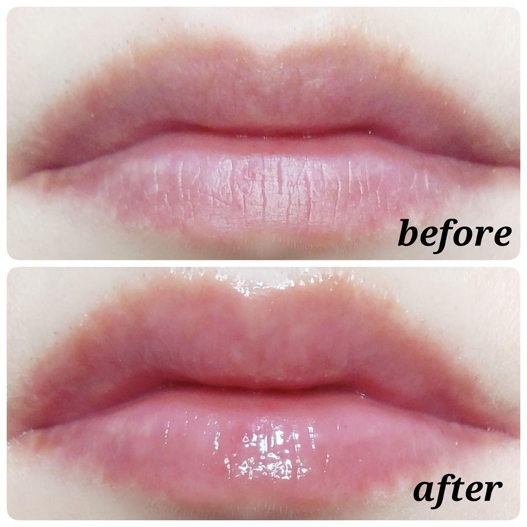 「唇の血色を良くする方法|血色感アップにおすすめリップアイテム&メイク方法もご紹介!」の画像(#126028)