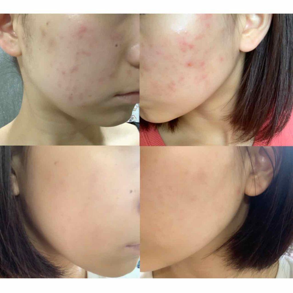 「敏感肌向け化粧品ランキング おすすめスキンケアをプチプラ・デパコス別にご紹介!」の画像(#133924)