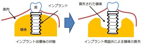 インプラント周囲炎の説明画像です