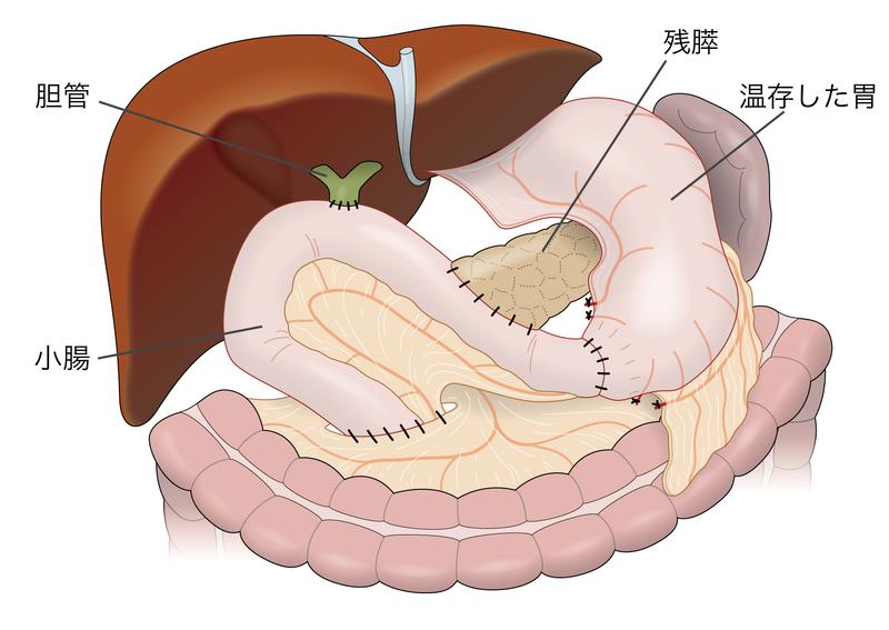 膵頭十二指腸切除術の後の消化管...