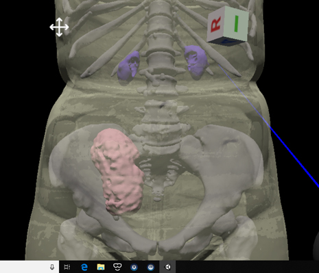 """腎移植患者さんが自分の腎臓に会う """"Meet the 腎"""" ~世界初! CTデータから作られた移植腎の3DデータをVirtual Realityで体験する~"""