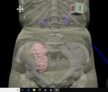 """腎移植患者さんが自分の腎臓に会う """"Meet the 腎"""" 移植腎の3DデータをVirtual Realityで体験する"""