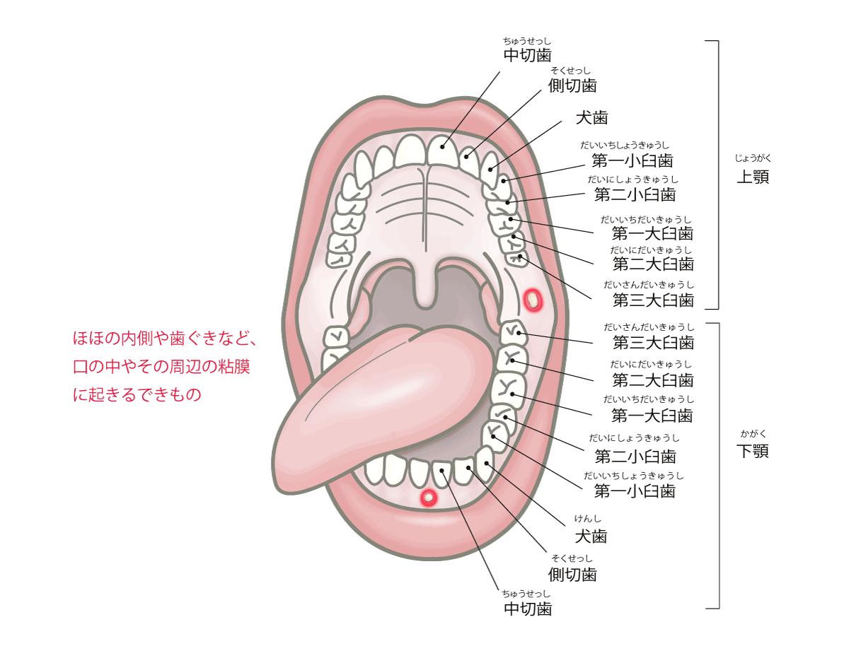 口内炎の説明画像