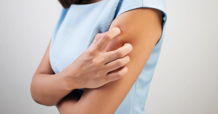 蕁麻疹を掻いている女性
