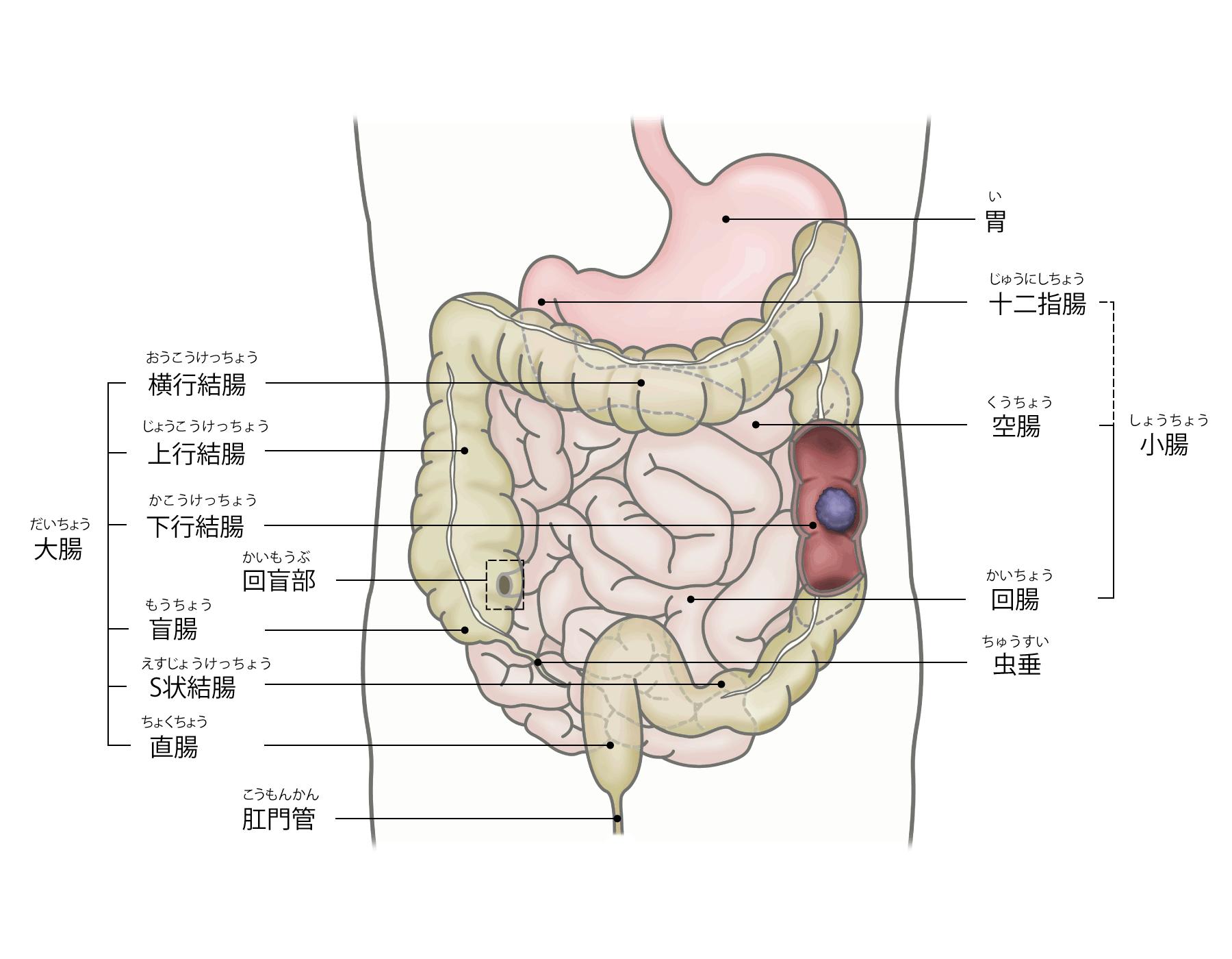 大腸がんの説明画像