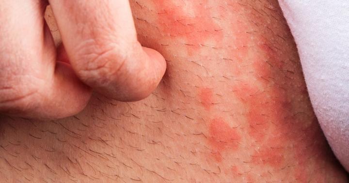 白血病 治る: 梅毒 皮膚症状 画像