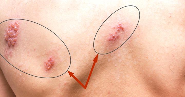 治癒 自然 帯状 疱疹