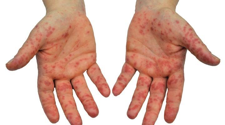 医師監修・作成]手足口病の発疹はいつどこにできる?ほかの症状