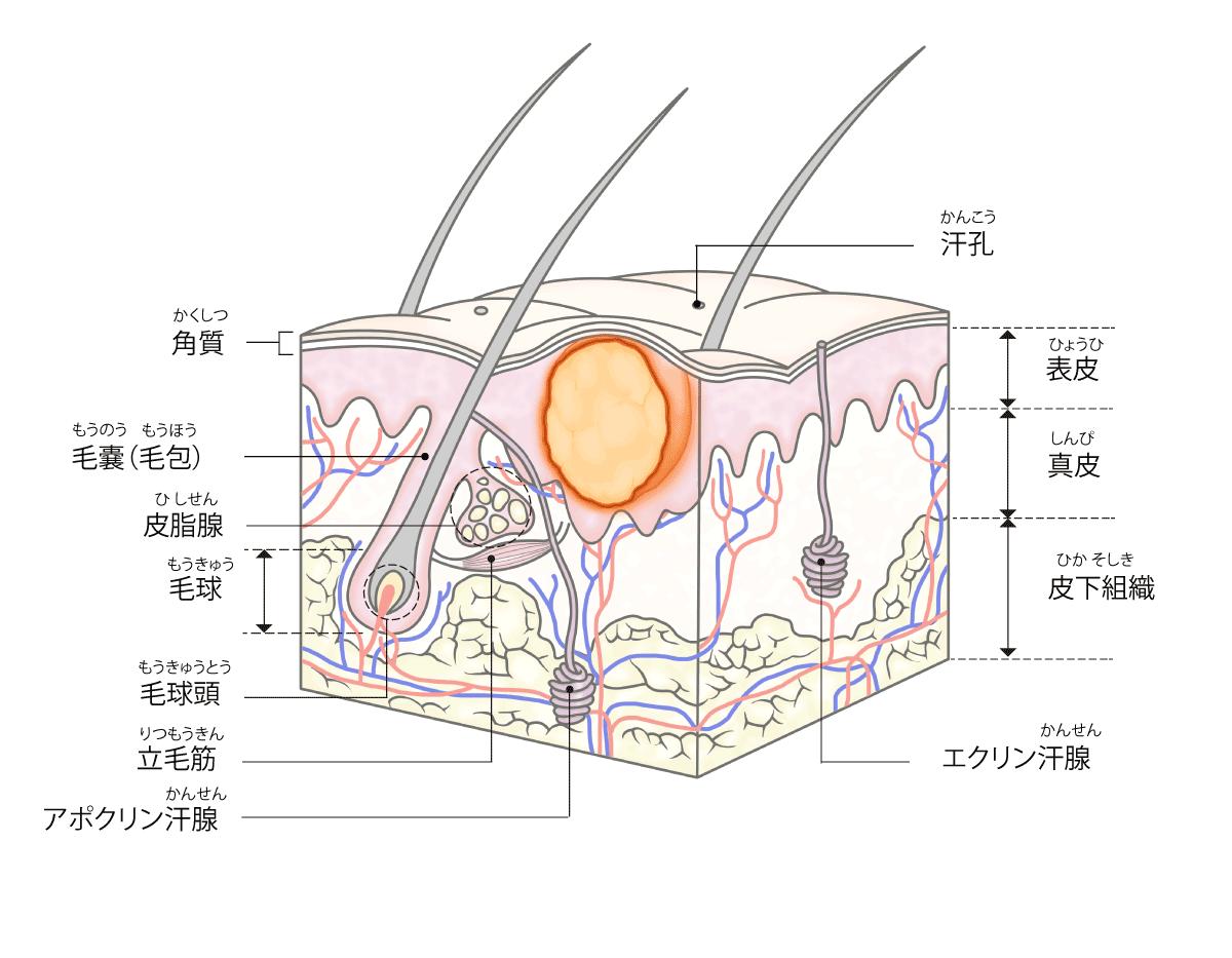 粉瘤の説明画像