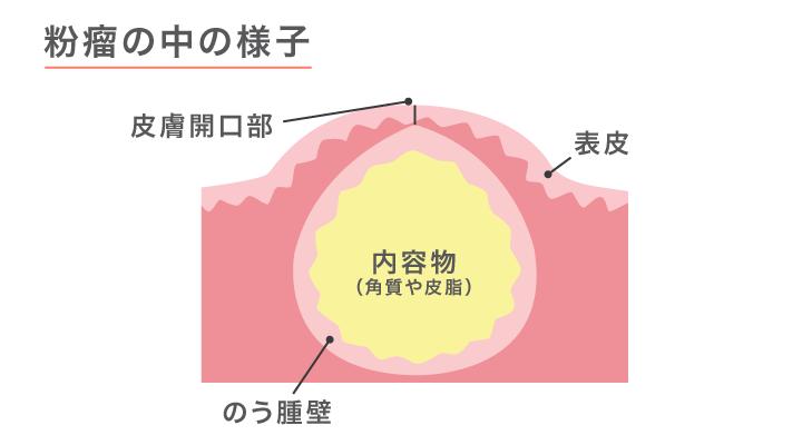 画像:粉瘤の中の構造の図解。表皮の下に袋状の構造(嚢胞)ができ、角質や皮脂が溜まっている。