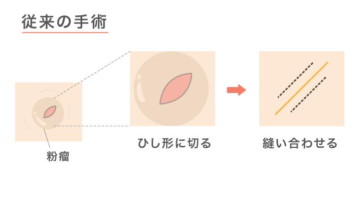 画像:粉瘤の従来の切開手術の図解。ひし形に切って嚢胞を取り出し縫い合わせる。