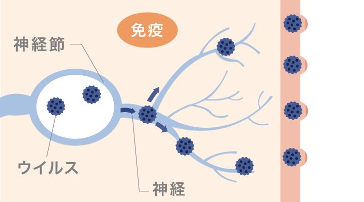 水痘帯状疱疹ウイルスの再感染により痛みと水ぶくれができる