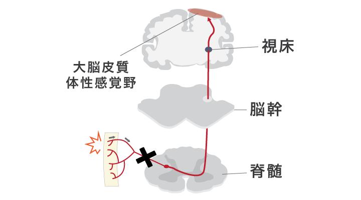 痛み刺激が脊髄・視床を通り大脳皮質体性感覚野に届く経路の模式図