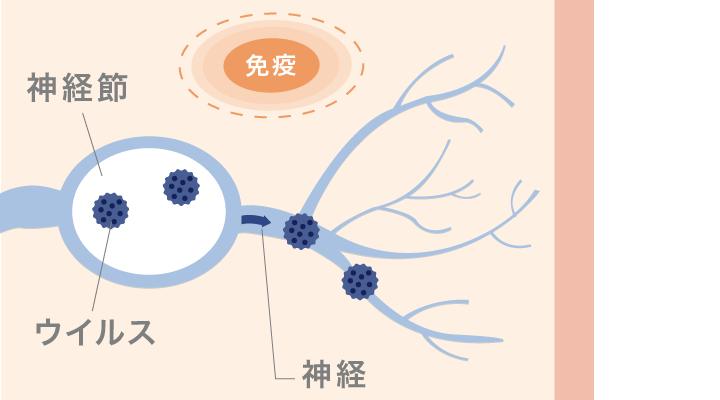 免疫が弱くなると神経節に潜伏感染していた水痘帯状疱疹ウイルスが再活性化する