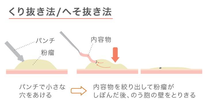画像:粉瘤のへそ抜き法(くり抜き法)手術の図解。パンチで穴を開けて内容物を絞りだしたあと、嚢胞を取り切る。