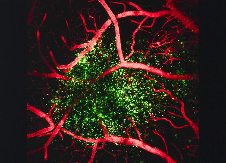 臓器そのものを体外でつくってしまおうと発想を転換