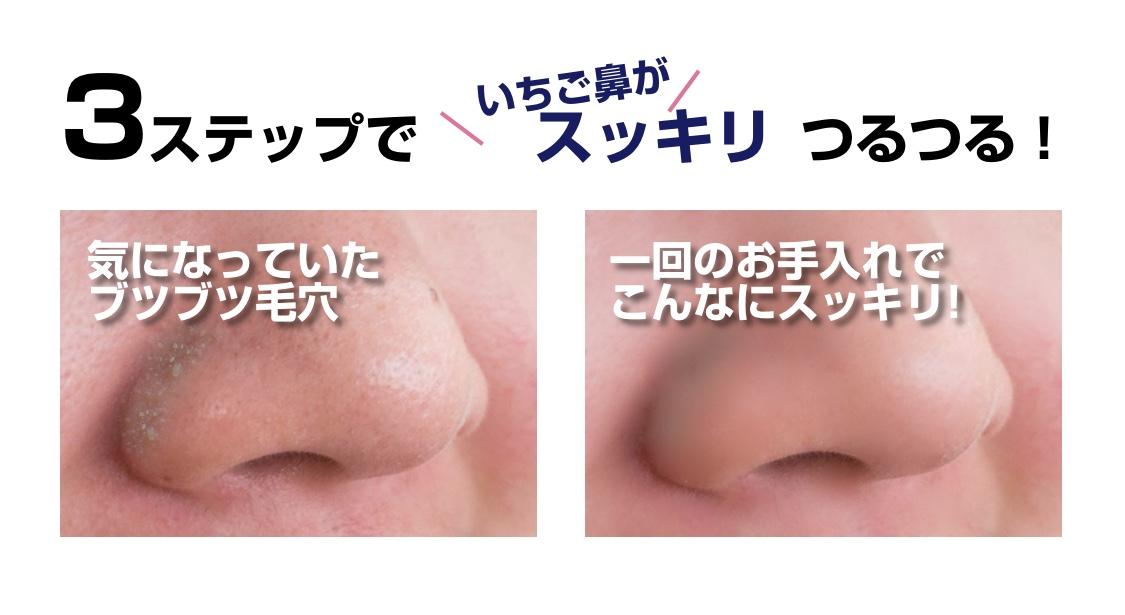 3ステップでイチゴ鼻がスッキリつるつる。