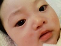 My daughter #14 〜口唇列手術から約4か月のむすめ〜
