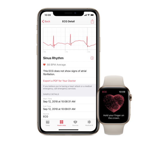 Apple Watchの心電図アプリが国内承認取得、まもなく有効化か? - iPhone Mania