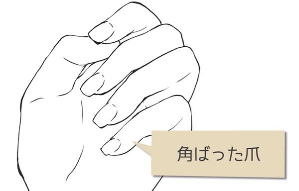 かくばった爪