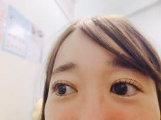 vision所属の木村さん