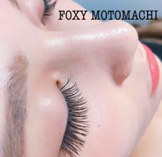FOXYMOTOMACHI所属のFOXYMOTOMACHI