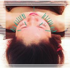 【口コミ240件超❗】最強小顔❤美顔鍼灸専門サロン✨当店の美顔鍼灸で即実感!!