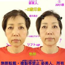 むくみ女子  本気改革❗3,980円 代謝リンパ・冷え体質✨6月募集✨