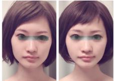 小顔シンメトリーサロン BodyWorksNavi所属の骨格美容矯正士Yonezawa