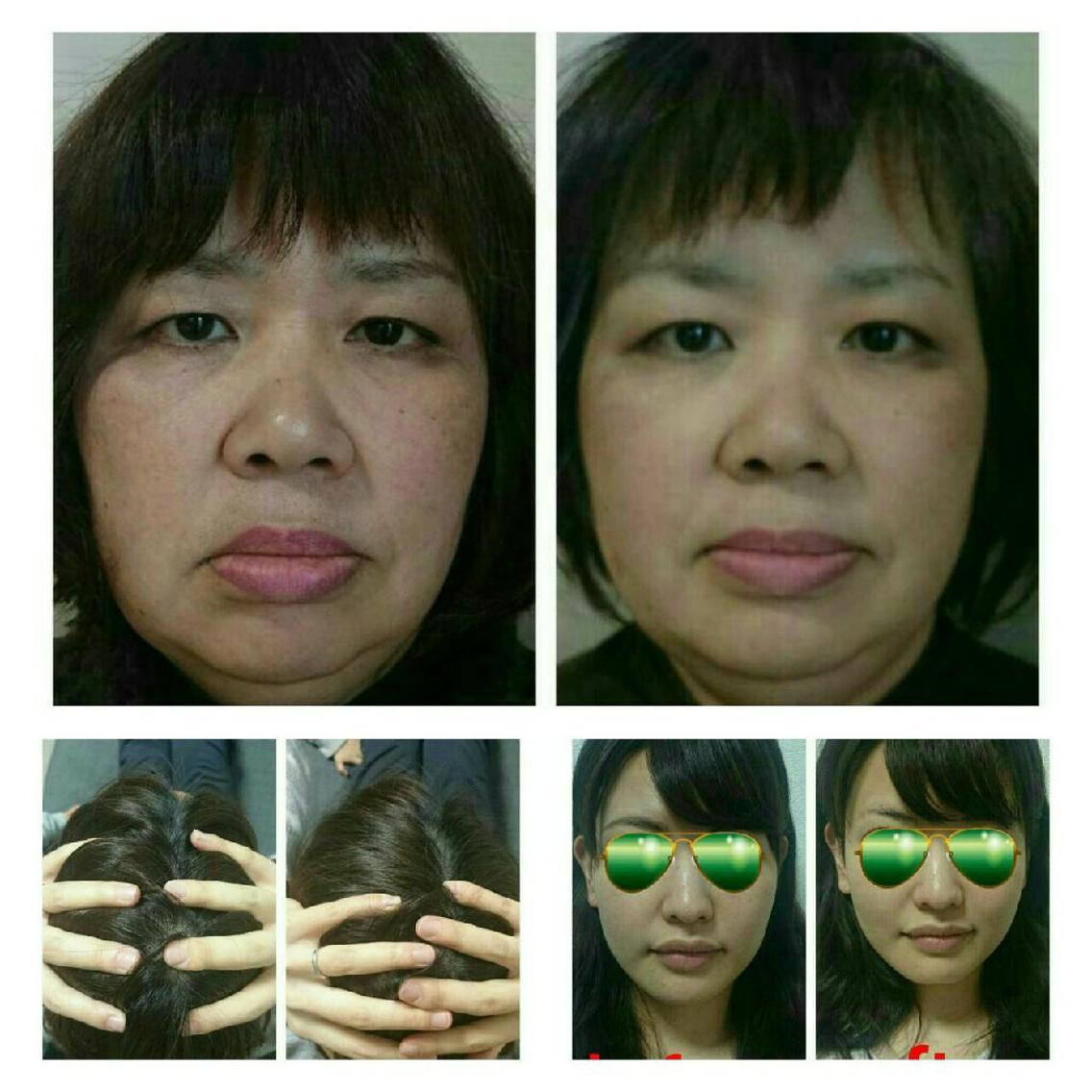 作業療法士が提供する゛即効性゛が自慢の美容整体Lily✨頭蓋骨や顔をみて身体の歪みや内臓の不調、食生活までが分かってしまう!?まるで魔法のような小顔骨格矯正&整体です。