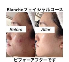 Blanche所属のBlanche-ブランシュ-