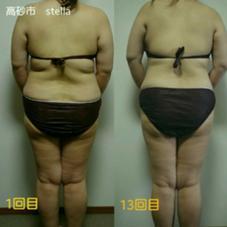 痩身・体質改善・筋膜リリース・セルライト除去
