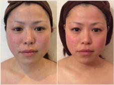 究極小顔術+上半身リンパ✨ダイエット中の方必見‼️周りに差をつけて可愛くなろう!痛気持ちいがクセになる、お顔と身体のお悩みスッキリ解消‼️