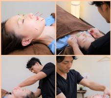 ルナソーレ 美容鍼灸サロン所属の吉田浩司